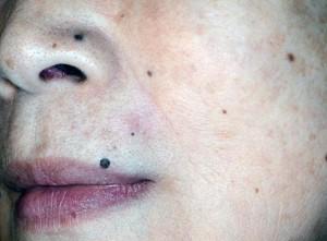 口唇のほくろ切除手術後