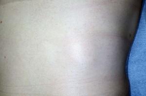 脂肪腫(術前)