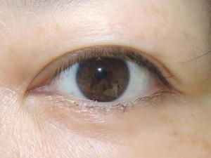 下瞼のほくろ切除手術後