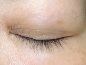 下瞼のホクロ切除後閉瞼障害無し