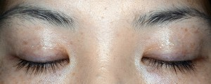 二重幅縮小術術後6ヶ月閉瞼