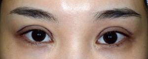 広すぎる二重、不自然な三重手術直後開瞼