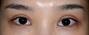 広すぎる二重、不自然な三重術後1ヶ月開瞼