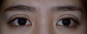 正しい幅広二重手術直後開瞼