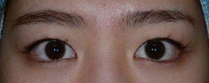 正しい幅広二重術前開瞼