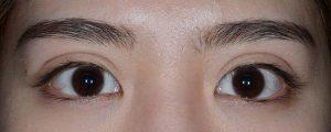正しい幅広二重術後1ヶ月開瞼