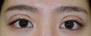 正しい幅広二重術後1日開瞼