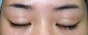 二重幅狭修正再癒着術前閉瞼