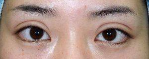 二重幅狭修正再癒着術前開瞼