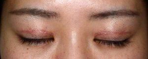 二重幅狭修正再癒着術後1ヶ月閉瞼