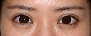 二重幅狭修正再癒着術後1ヶ月開瞼