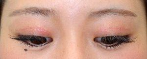 二重幅狭修正再癒着術後3ヶ月開瞼