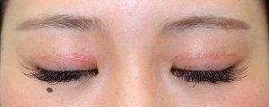 二重幅狭修正再癒着術後3ヶ月閉瞼