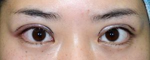 二重幅狭修正再癒着術直後開瞼