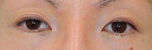 切開二重ラインを消す脂肪移植抜糸後開瞼
