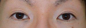 切開二重ラインを消す脂肪移植術前開瞼
