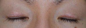 切開二重ラインを消す脂肪移植術後1ヶ月閉瞼