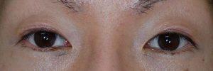 切開二重ラインを消す脂肪移植術後1ヶ月開瞼