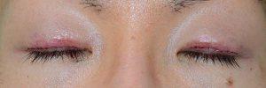 切開二重ラインを消す脂肪移植術後1日目閉瞼