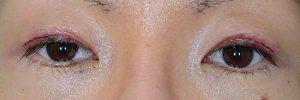 切開二重ラインを消す脂肪移植術後1日目開瞼