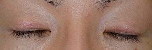 切開二重ラインを消す脂肪移植術後2ヶ月閉瞼
