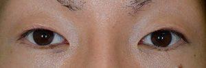 切開二重ラインを消す脂肪移植術後2ヶ月開瞼