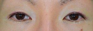 切開二重ラインを消す脂肪移植術直後開瞼